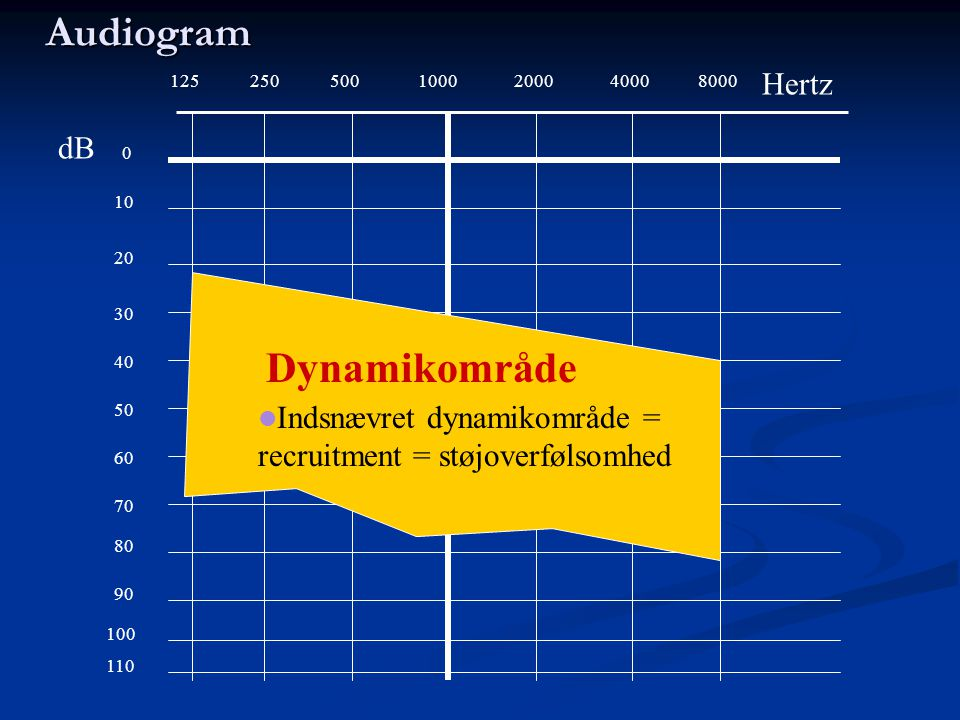 1255002501000200040008000 0 10 20 30 40 50 60 70 80 90 100 Audiogram 110 Hertz dB Dynamikområde  Indsnævret dynamikområde = recruitment = støjoverføl