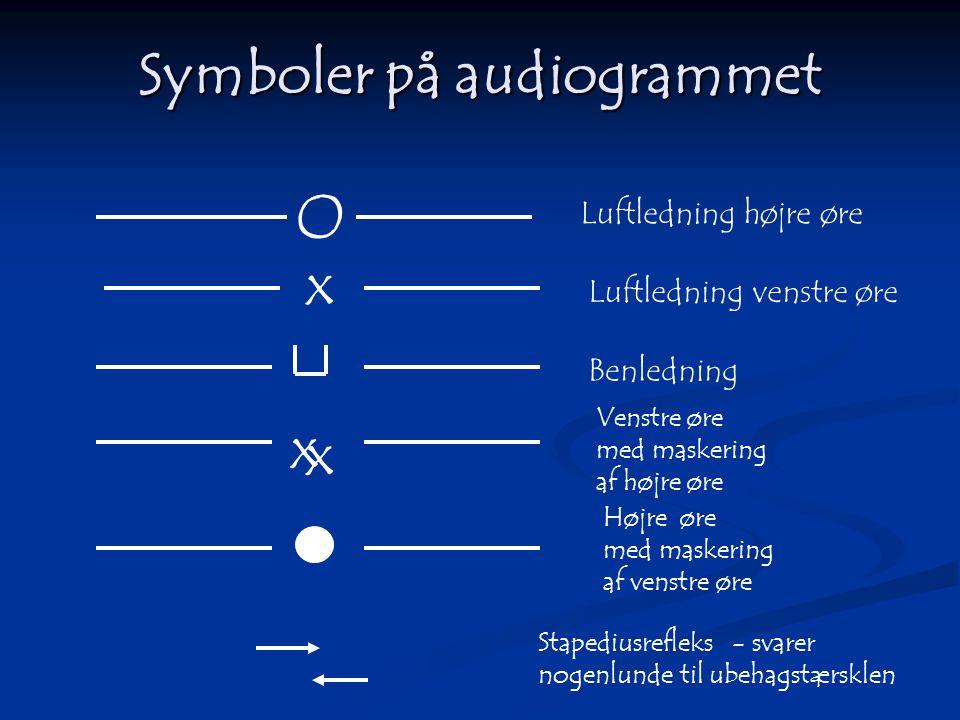 Symboler på audiogrammet Luftledning højre øre Luftledning venstre øre Venstre øre med maskering af højre øre Benledning O x x x Højre øre med maskeri