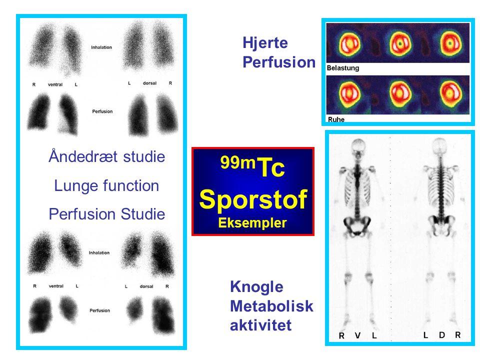 Åndedræt studie Lunge function Perfusion Studie 99m Tc Sporstof Eksempler Hjerte Perfusion Knogle Metabolisk aktivitet