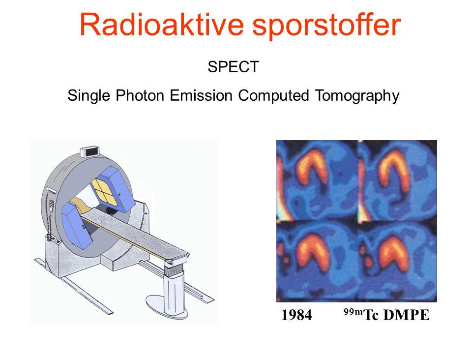 SPECT Single Photon Emission Computed Tomography 1984 99m Tc DMPE Radioaktive sporstoffer