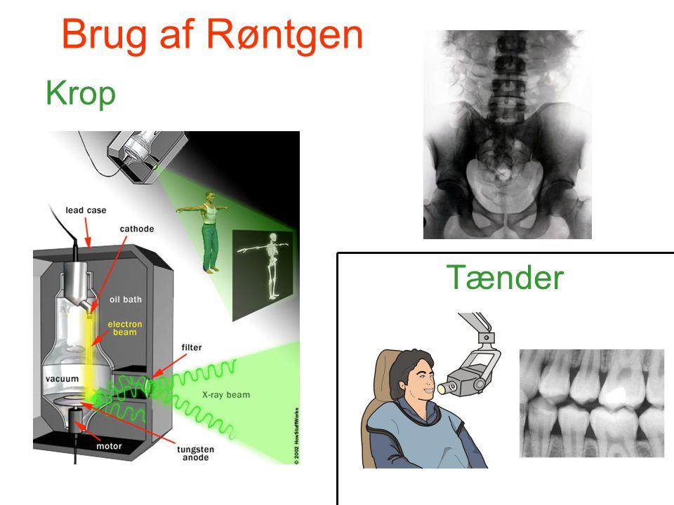 Brug af Røntgen Krop Tænder