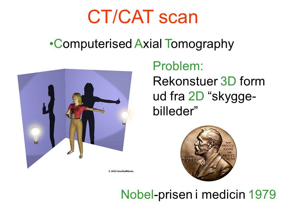 CT/CAT scan •Computerised Axial Tomography Problem: Rekonstuer 3D form ud fra 2D skygge- billeder Nobel-prisen i medicin 1979