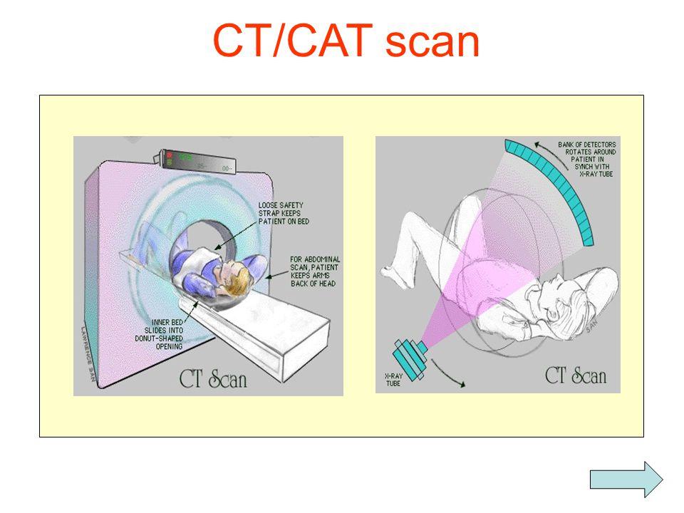 Kræftbehandling •Hver femte kræftpatient får strålebehandling •I Danmark : electronaccelerator   -stråler