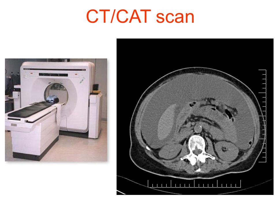 Kræftbehandling