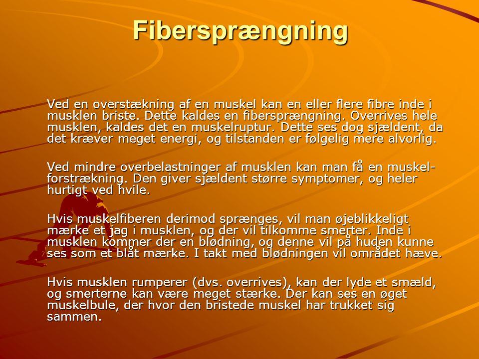Fibersprængning Ved en overstækning af en muskel kan en eller flere fibre inde i musklen briste. Dette kaldes en fibersprængning. Overrives hele muskl