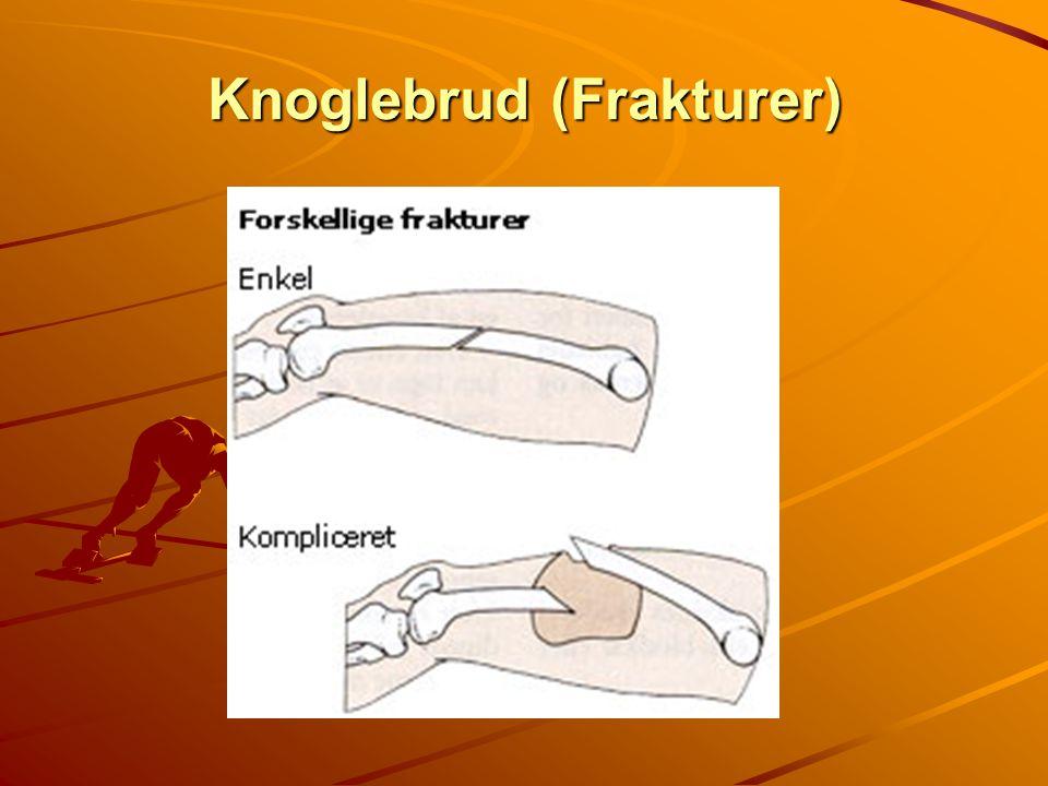 Knoglebrud (Frakturer)