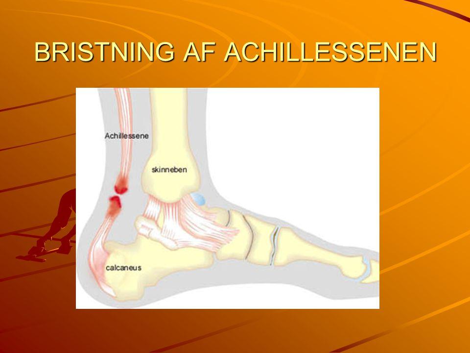 Achillessenen Årsag: Hel eller delvis bristning af Achillessenen opstår sædvanligvis, når Achillessenen bliver udspændt samtidig med lægmusklen trækker sig sammen (eccentrisk kontraktion), som det f.eks.
