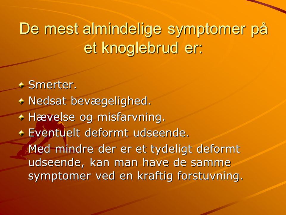 De mest almindelige symptomer på et knoglebrud er: Smerter. Nedsat bevægelighed. Hævelse og misfarvning. Eventuelt deformt udseende. Med mindre der er