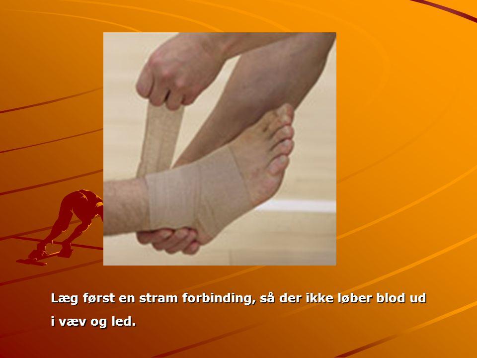 Læg først en stram forbinding, så der ikke løber blod ud i væv og led. Læg først en stram forbinding, så der ikke løber blod ud i væv og led.