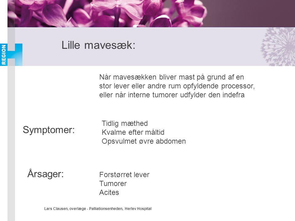 Lars Clausen, overlæge - Palliationsenheden, Herlev Hospital Lille mavesæk: Når mavesækken bliver mast på grund af en stor lever eller andre rum opfyl