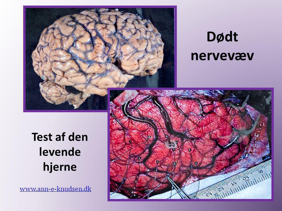 Dødt nervevæv www.ann-e-knudsen.dk Test af den levende hjerne