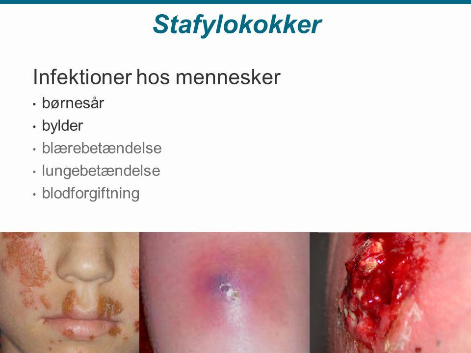 Stafylokokker Infektioner hos mennesker • børnesår • bylder • blærebetændelse • lungebetændelse • blodforgiftning