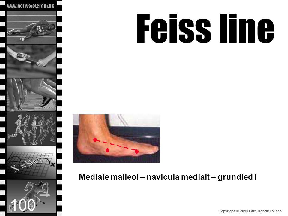 www.netfysioterapi.dk Copyright © 2010 Lars Henrik Larsen Mediale malleol – navicula medialt – grundled I Feiss line 100