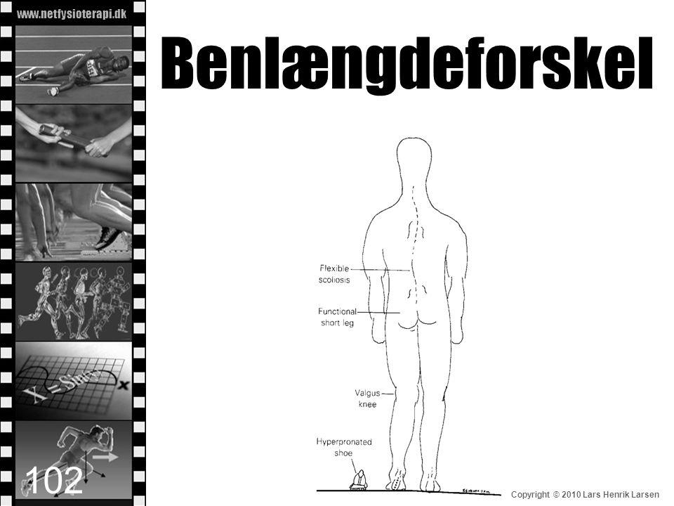 www.netfysioterapi.dk Copyright © 2010 Lars Henrik Larsen Benlængdeforskel 102