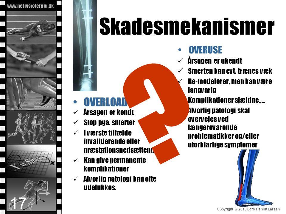 www.netfysioterapi.dk Copyright © 2010 Lars Henrik Larsen Skadesmekanismer 17 •OVERLOAD  Årsagen er kendt  Stop pga. smerter  I værste tilfælde inv