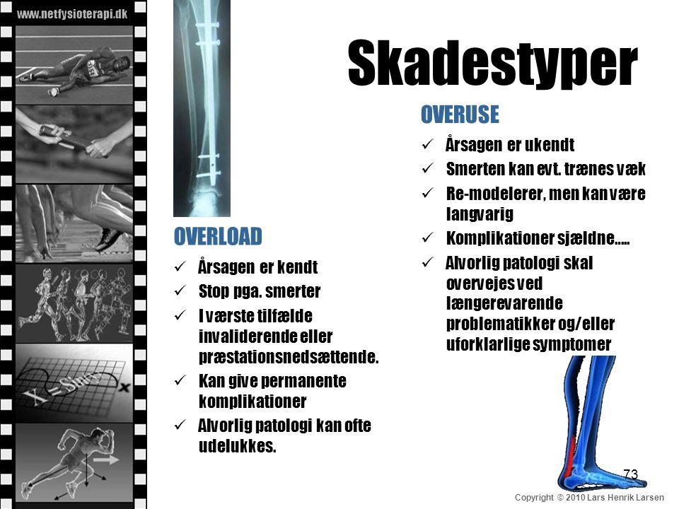 www.netfysioterapi.dk Copyright © 2010 Lars Henrik Larsen Skadestyper OVERLOAD  Årsagen er kendt  Stop pga. smerter  I værste tilfælde invaliderend