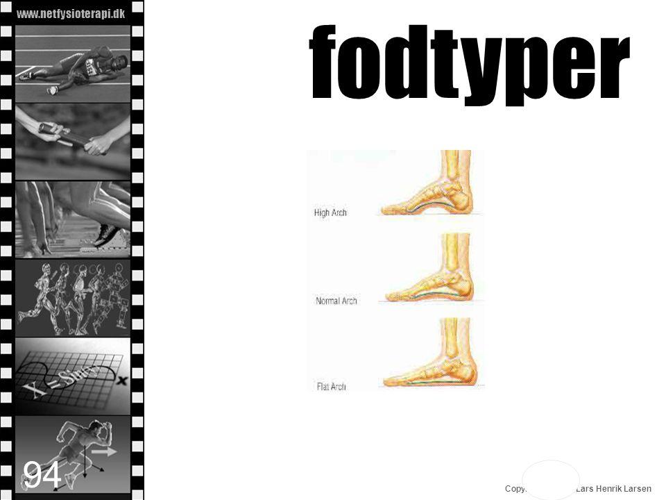 www.netfysioterapi.dk Copyright © 2010 Lars Henrik Larsen fodtyper 94
