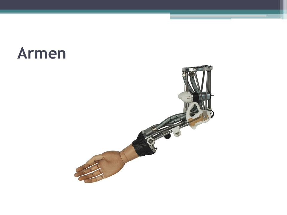 Knoglerne i armen omfatter følgende: ▫ Skulderbæltet ▫ Overarmsbenet ▫ Underarmens knogler ▫ Håndens skelet