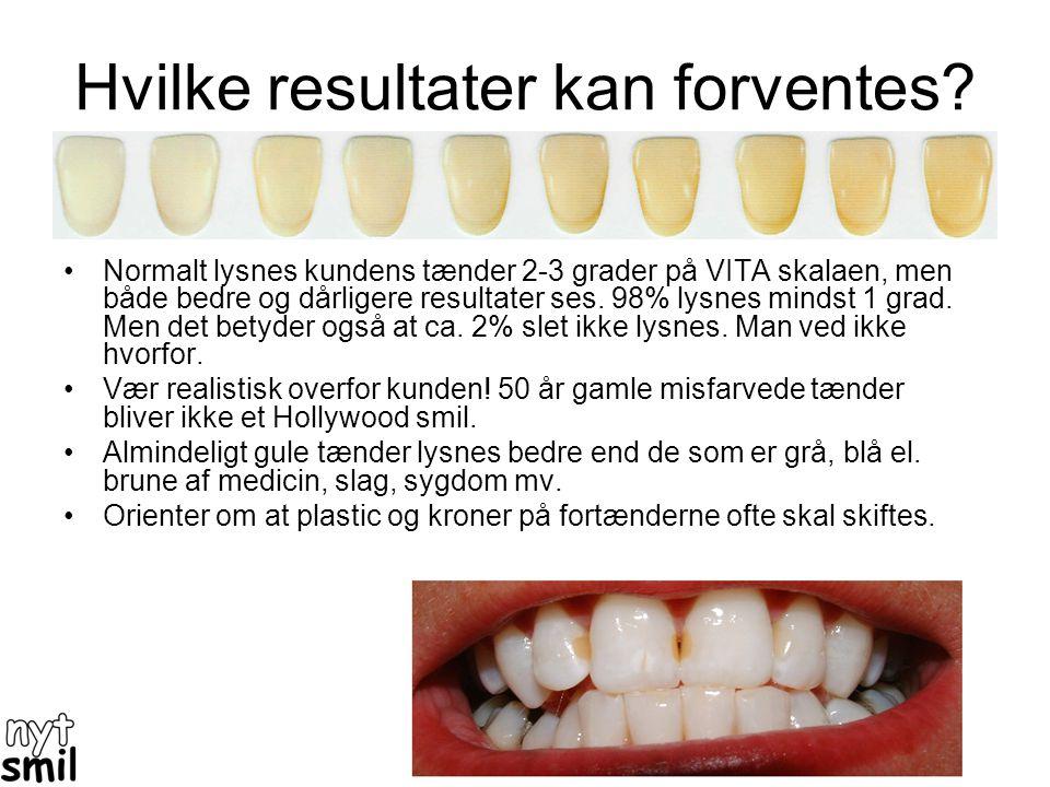 Skinne metoden •Foregår ved: 1)at der tages aftryk af kundens tænder. Skal bruges inden 2-3 dage. 2)Ud fra aftryk laver laboratorium et sæt skinner 3)