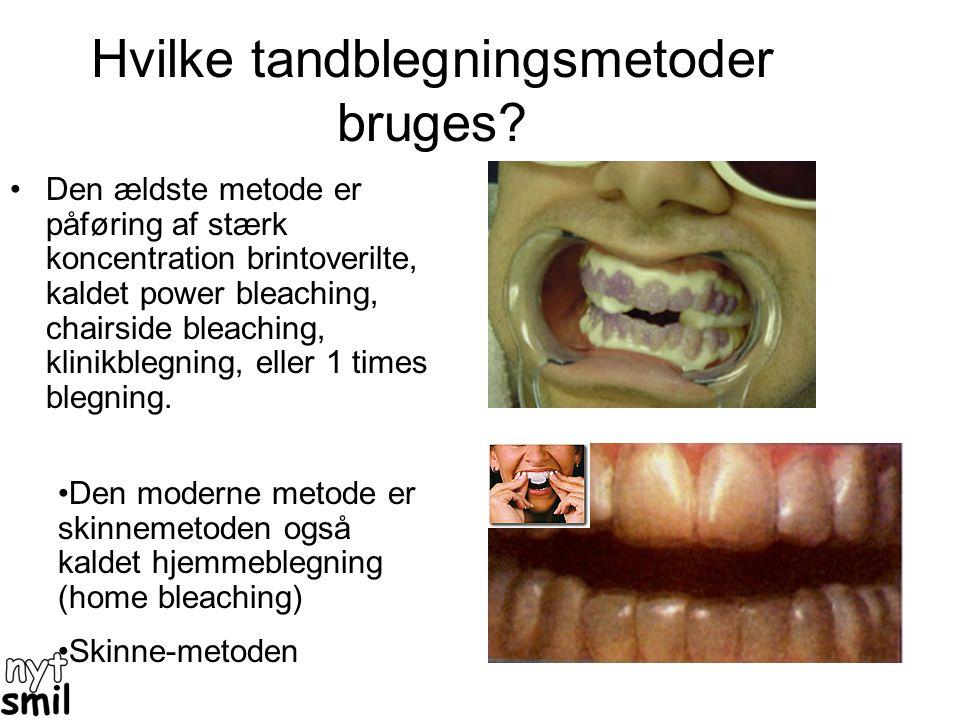 Hvad virker mod gule tænder? •Det eneste stof der er videnskabeligt testet til at lysne gule tænder er brintoverilte (H 2 O 2 ) på engelsk Hydrogen Pe