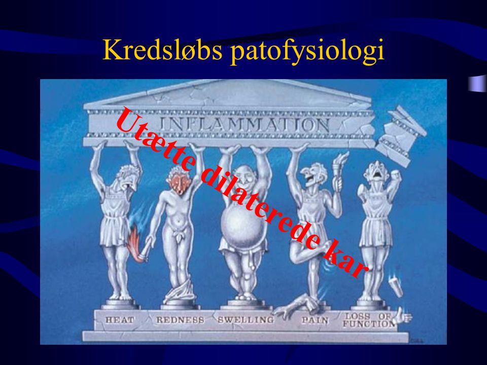 •Preload  –Hypovolæmi –Venedilation •Pulmonal modstand  •Kontraktilitet  –Septisk kardiomyopati •Arytmier  •Systemisk modstand  –shuntning Dellinger RP.