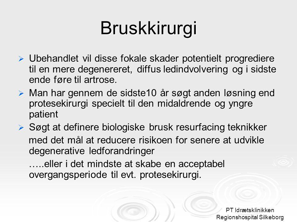 PT Idrætsklinikken Regionshospital Silkeborg Bruskkirurgi  Ubehandlet vil disse fokale skader potentielt progrediere til en mere degenereret, diffus ledindvolvering og i sidste ende føre til artrose.