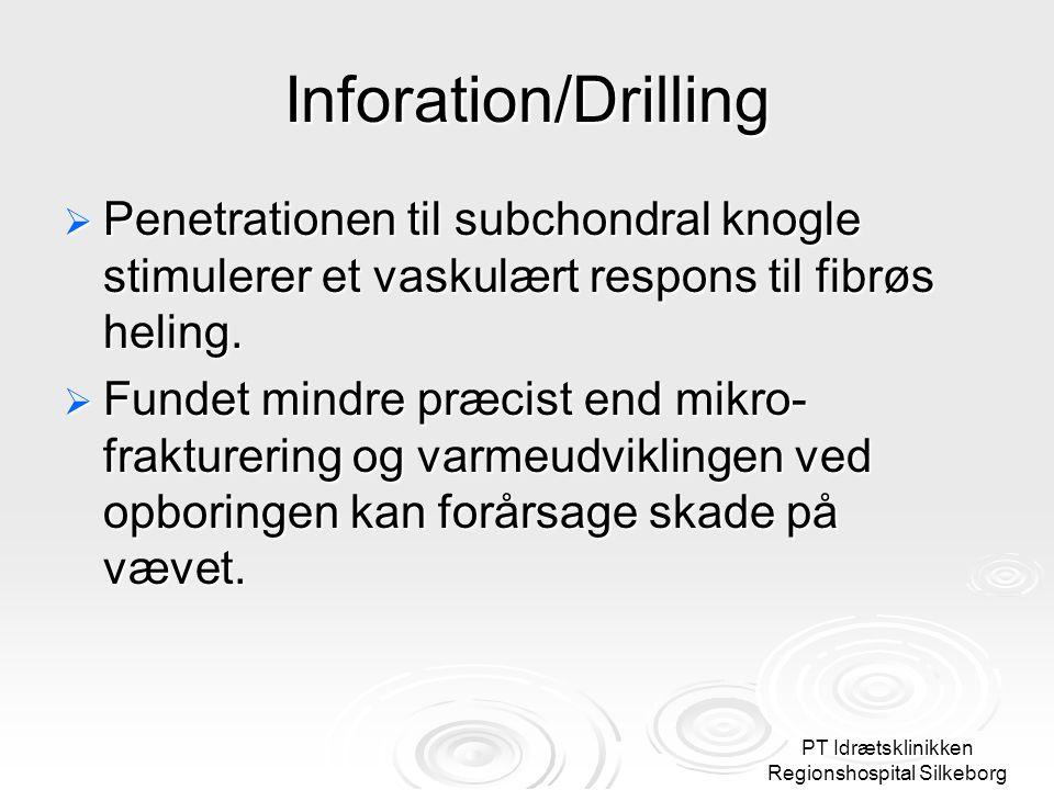 PT Idrætsklinikken Regionshospital Silkeborg Inforation/Drilling  Penetrationen til subchondral knogle stimulerer et vaskulært respons til fibrøs heling.