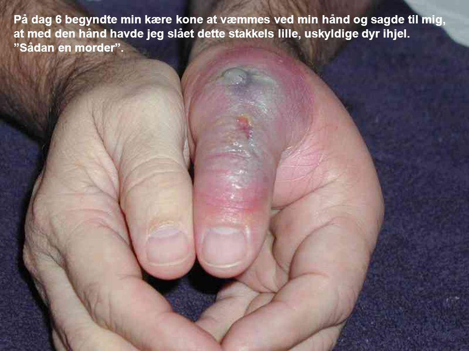På dag 6 begyndte min kære kone at væmmes ved min hånd og sagde til mig, at med den hånd havde jeg slået dette stakkels lille, uskyldige dyr ihjel.