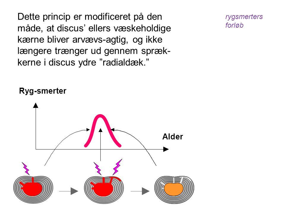 Ryg-smerter Dette princip er modificeret på den måde, at discus' ellers væskeholdige kærne bliver arvævs-agtig, og ikke længere trænger ud gennem spræ