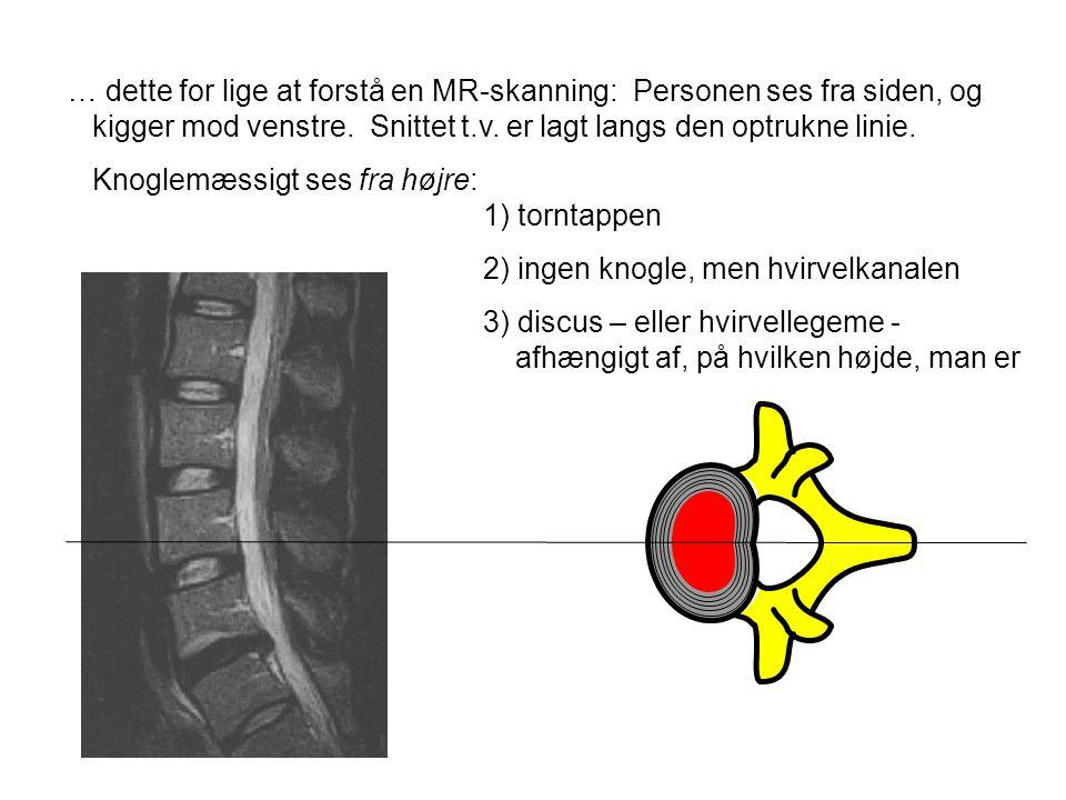 … dette for lige at forstå en MR-skanning: Personen ses fra siden, og kigger mod venstre. Snittet t.v. er lagt langs den optrukne linie. Knoglemæssigt