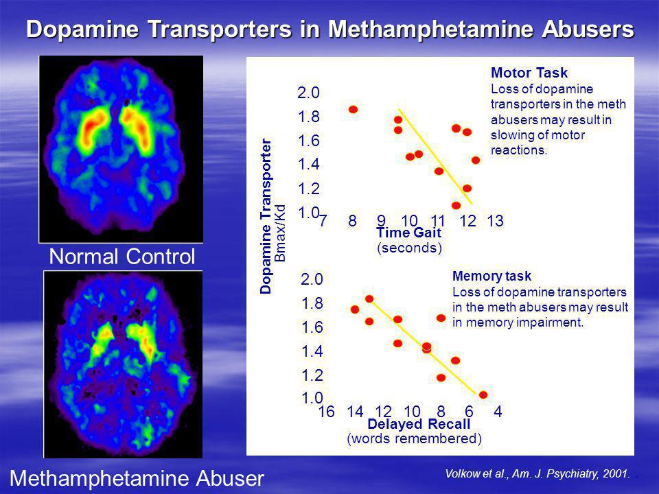 Dopamine Transporters in Methamphetamine Abusers Normal Control Methamphetamine Abuser Motor Task Loss of dopamine transporters in the meth abusers ma