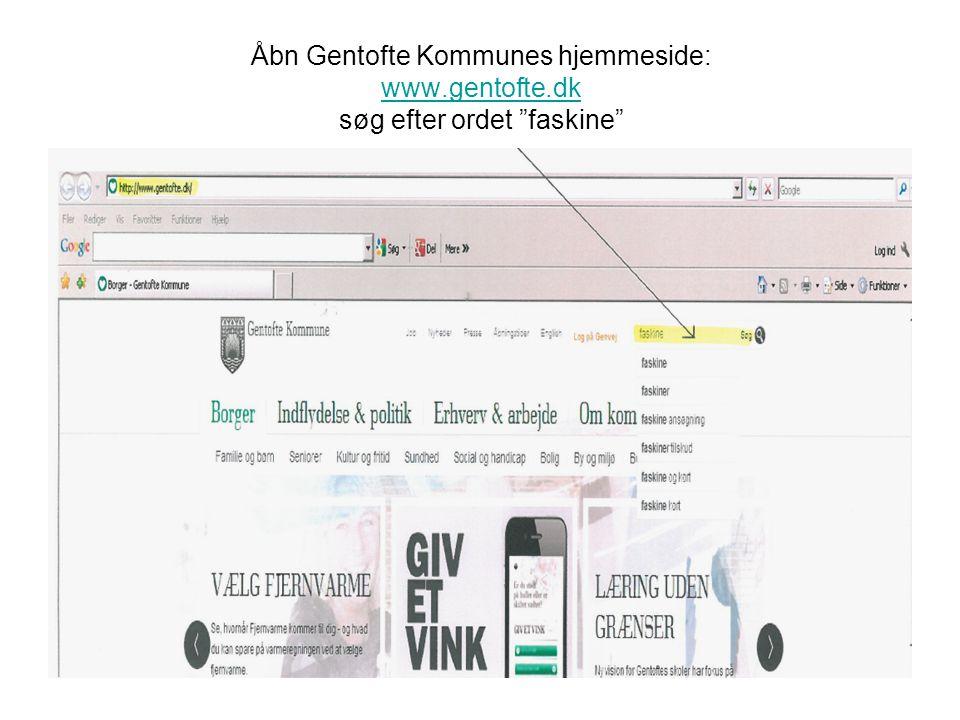 """Åbn Gentofte Kommunes hjemmeside: www.gentofte.dk søg efter ordet """"faskine"""" www.gentofte.dk"""