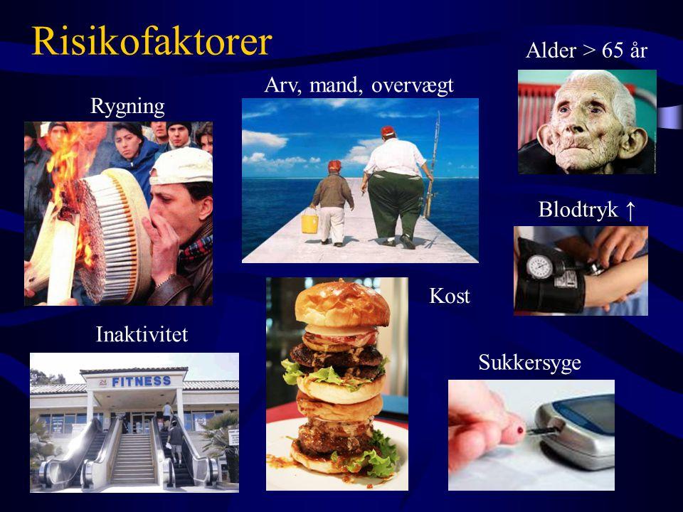 Arv, mand, overvægt Kost Rygning Inaktivitet Sukkersyge Blodtryk ↑ Risikofaktorer Alder > 65 år