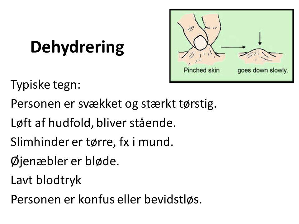 symptomer dehydrering