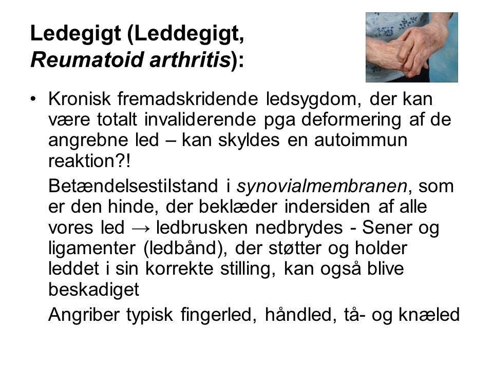 Ledegigt (Leddegigt, Reumatoid arthritis): •Kronisk fremadskridende ledsygdom, der kan være totalt invaliderende pga deformering af de angrebne led – kan skyldes en autoimmun reaktion?.