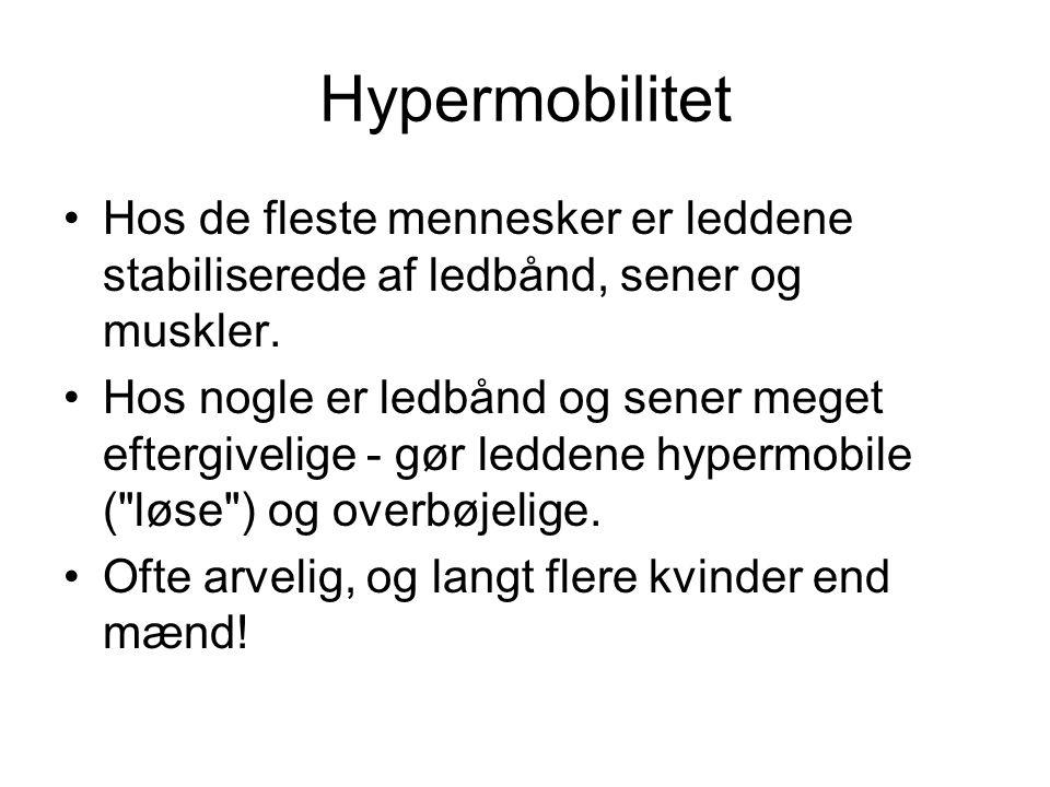 Hypermobilitet •Hos de fleste mennesker er leddene stabiliserede af ledbånd, sener og muskler.