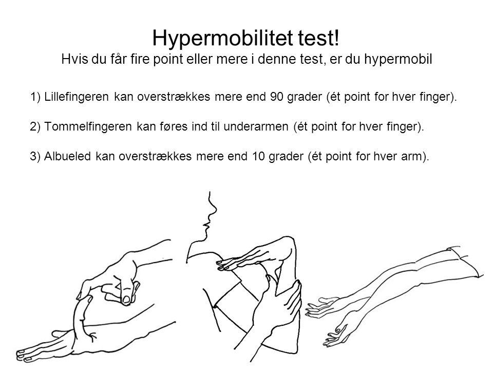 Hypermobilitet test.