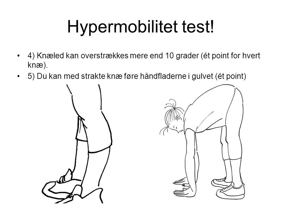 Hypermobilitet test.•4) Knæled kan overstrækkes mere end 10 grader (ét point for hvert knæ).