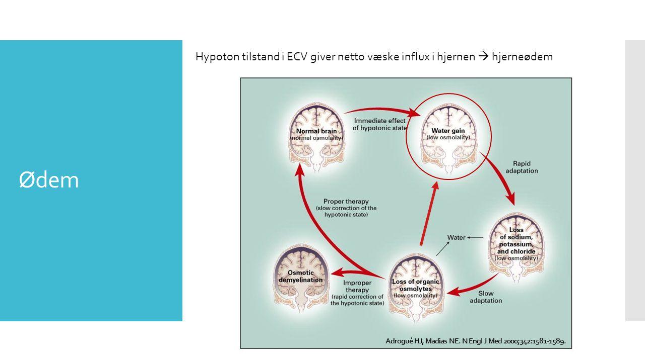 Ødem Hypoton tilstand i ECV giver netto væske influx i hjernen  hjerneødem Adrogué HJ, Madias NE.