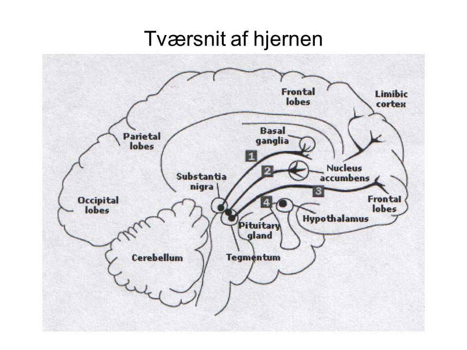 Tværsnit af hjernen