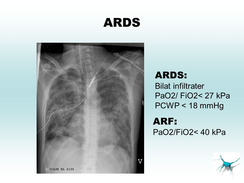 ARDS ARDS: Bilat infiltrater PaO2/ FiO2< 27 kPa PCWP < 18 mmHg ARF: PaO2/FiO2< 40 kPa