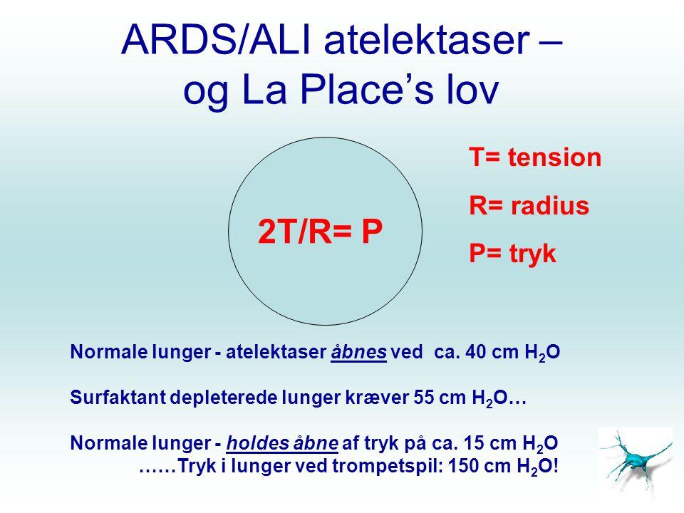 ARDS/ALI atelektaser – og La Place's lov 2T/R= P Normale lunger - atelektaser åbnes ved ca. 40 cm H 2 O Surfaktant depleterede lunger kræver 55 cm H 2