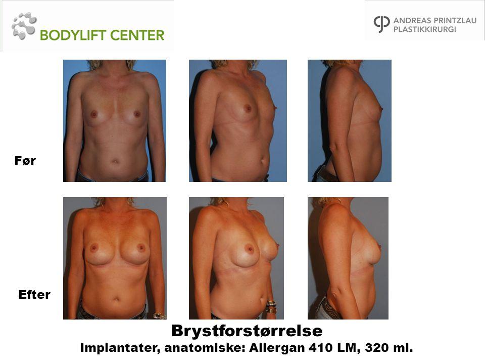 Brystforstørrelse Implantater, anatomiske: Allergan 410 LM, 320 ml. Før Efter