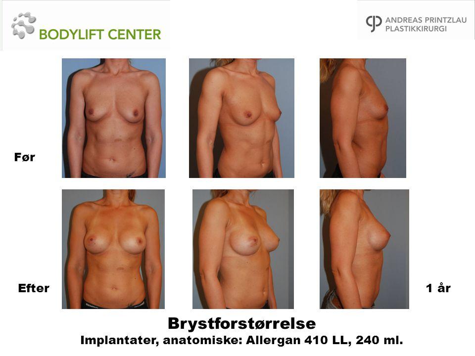 Brystforstørrelse Implantater, anatomiske: Allergan 410 LL, 240 ml. Før Efter1 år