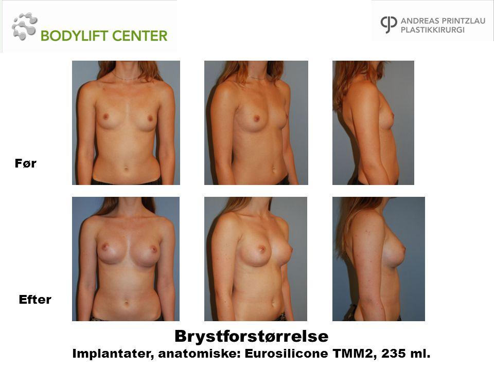 Brystforstørrelse Implantater, anatomiske: Eurosilicone TMM2, 235 ml. Før Efter