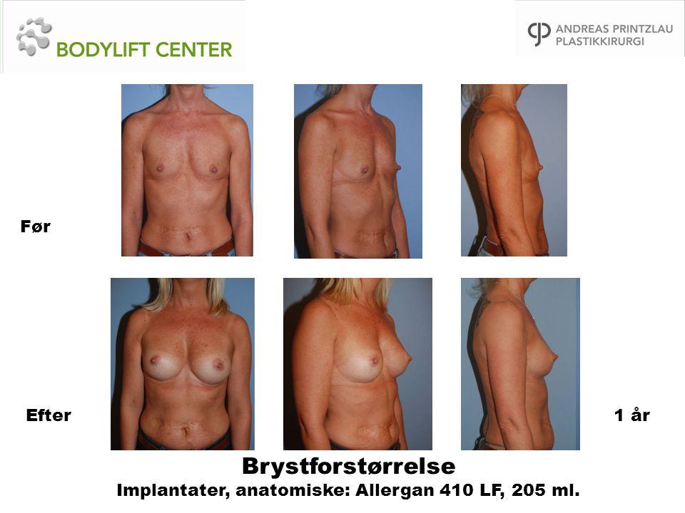 Brystforstørrelse Implantater, anatomiske: Allergan 410 LF, 205 ml. Før Efter1 år