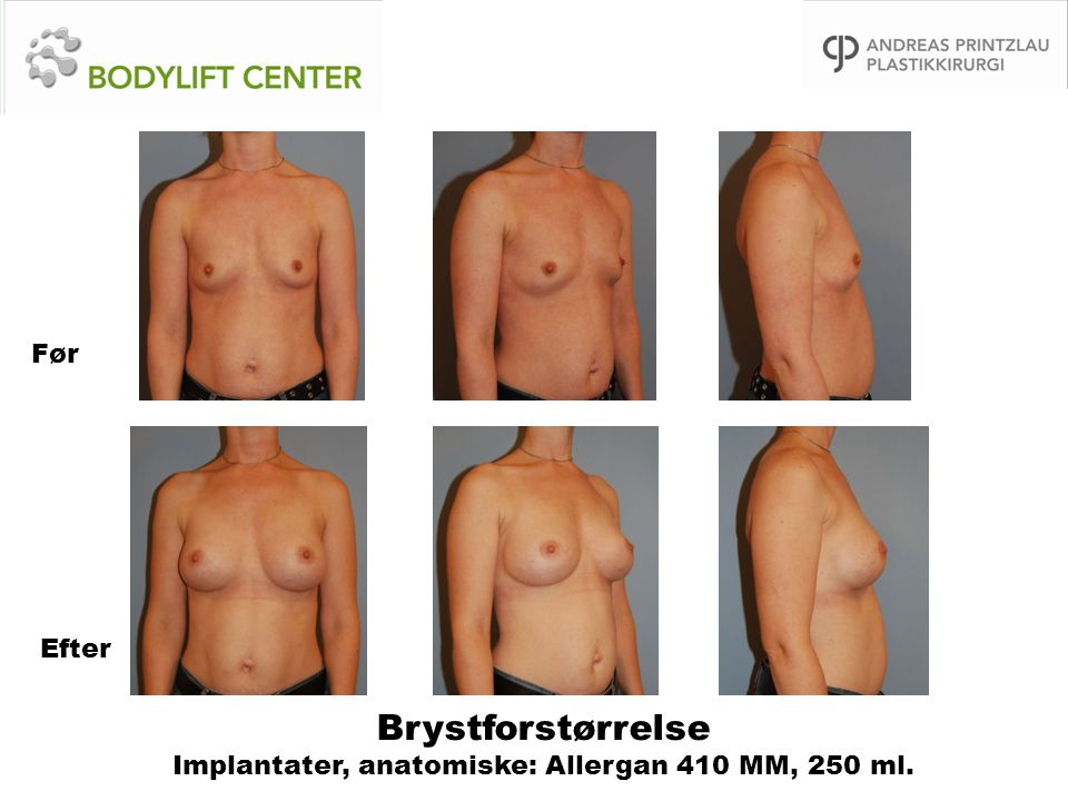 Brystforstørrelse Implantater, anatomiske: Allergan 410 MM, 250 ml. Før Efter
