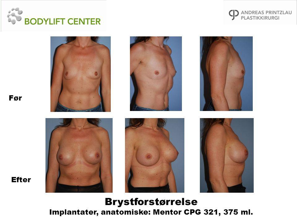 Brystforstørrelse Implantater, anatomiske: Mentor CPG 321, 375 ml. Før Efter