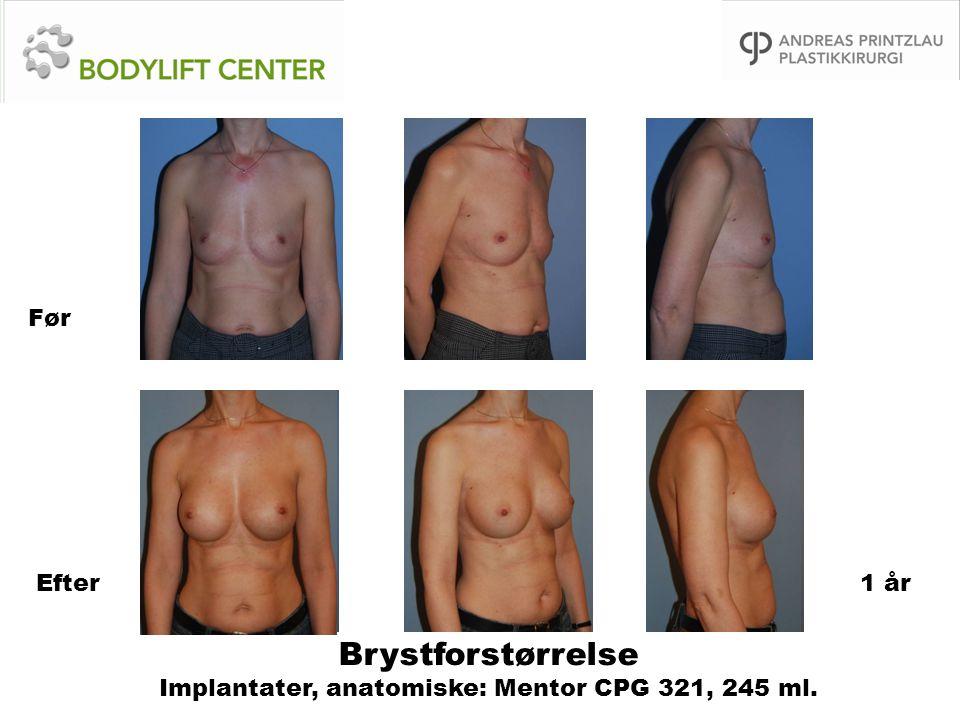 Brystforstørrelse Implantater, anatomiske: Mentor CPG 321, 245 ml. Før Efter1 år