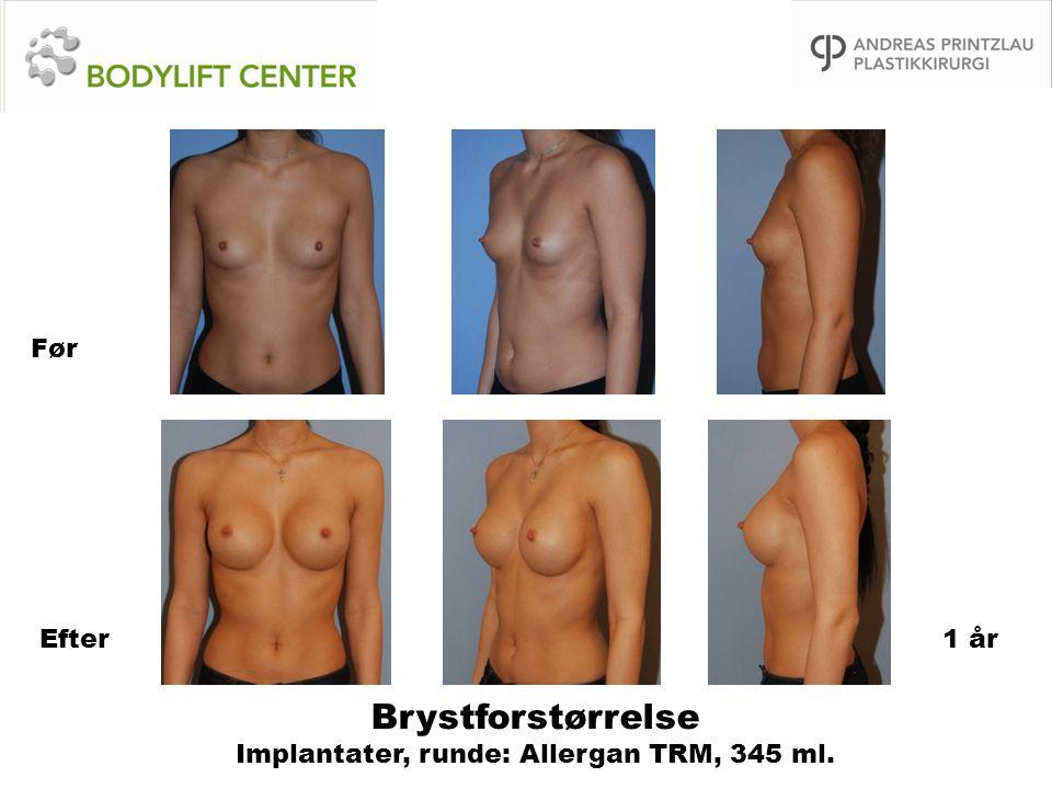 Brystforstørrelse Implantater, runde: Allergan TRM, 345 ml. Før Efter1 år
